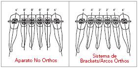 Titanium Orthos